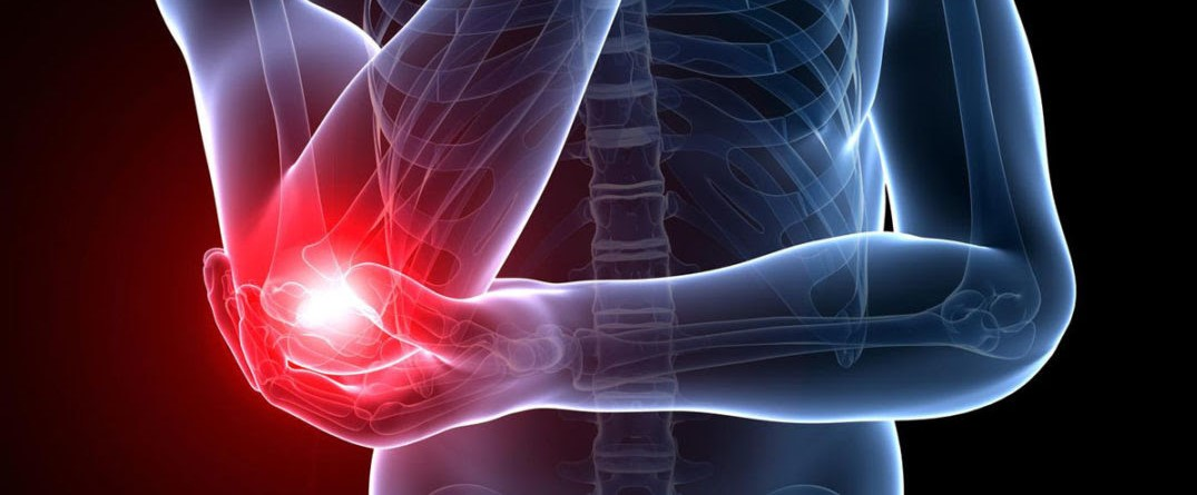 Tennis Elbow – Physio Solutions